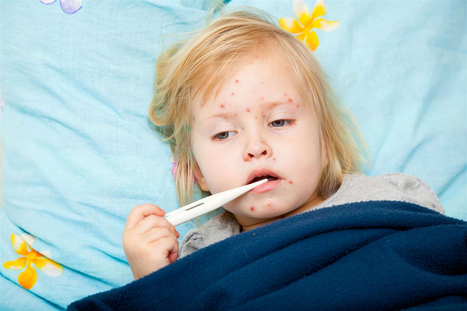 Measles is highly infectious and spreads by droplets in coughs and sneezes. The infection lasts seven to 10 days. But while most people recover completely, it can cause some serious complications.